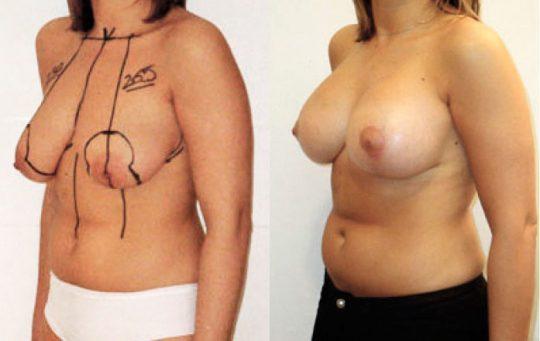 photo avant apres de lifting des seins en Turquie