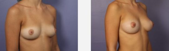Lipofilling seins avant après