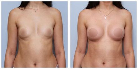 photo lipofilling seins Turquie avant après