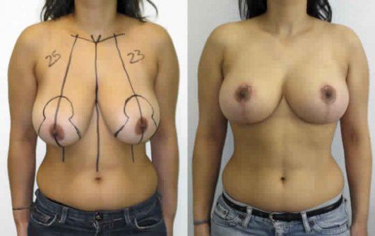 reduction mammaire Turquie avant après