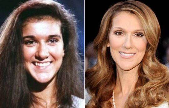 Céline Dion et chirurgie esthétique