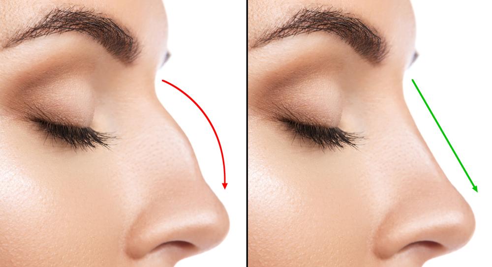 chirurgie du nez turquie