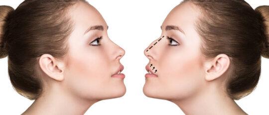 chirurgie ultrasonique nez